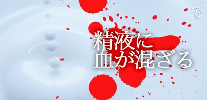 gesubaka_209_chigamazaru.jpg